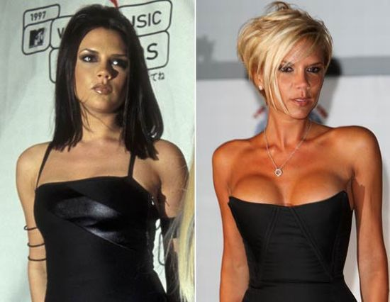victoria_beckham-celebrities-with-breast-implants
