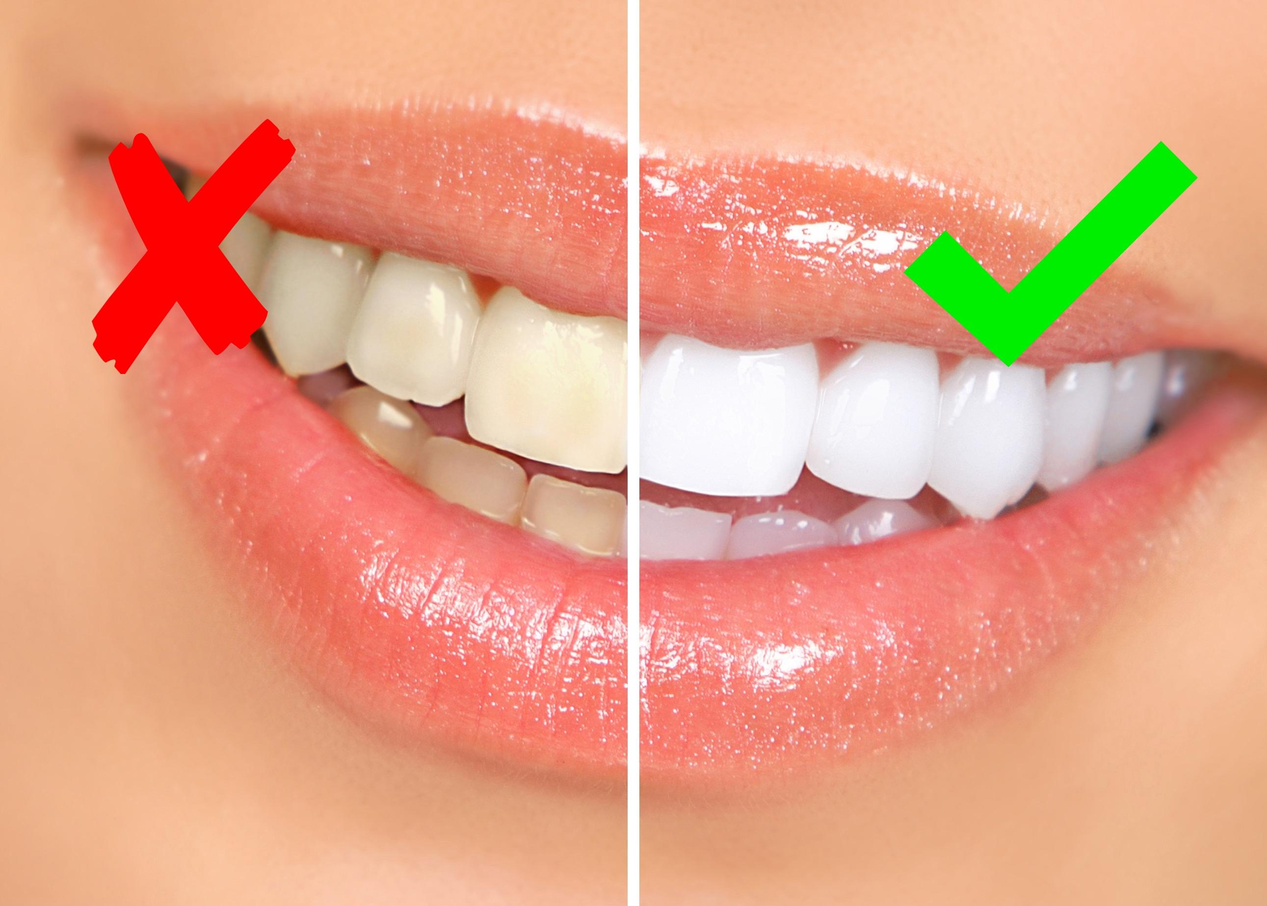 teeth-whitening-sample1