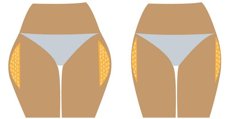 pierderea în greutate care alăptează la 3 luni cursul de căldură provoacă pierderea în greutate